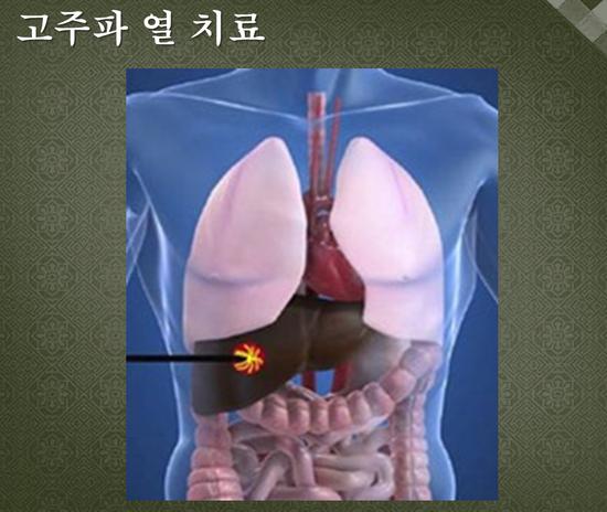 고주판 열치료 2