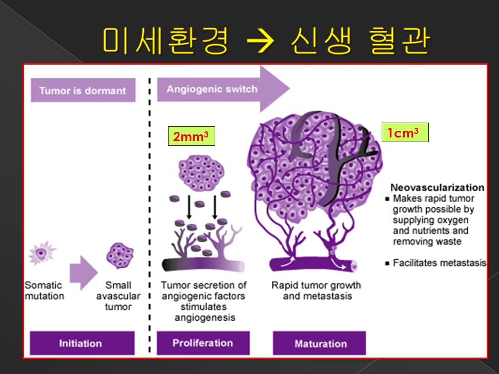암치료 전략 5계 미세환경 신생 혈관