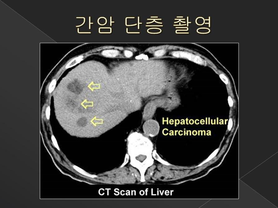 간암 단층 촬영 2
