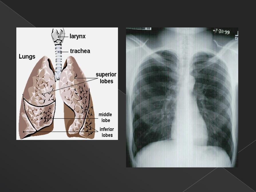 폐의 해부학적 구조와 폐암 3
