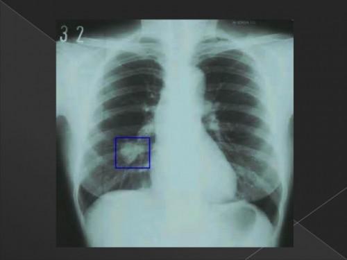 폐암의 진단 검사 그리고 치료성적