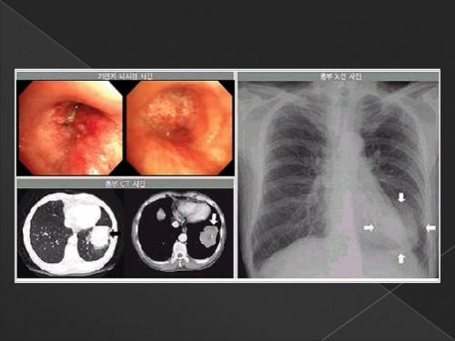 폐암의 진단과 검사