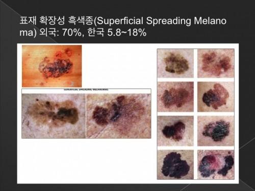 피부암 2
