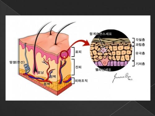 피부암11