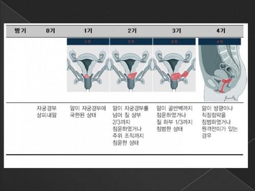 자궁경부암3