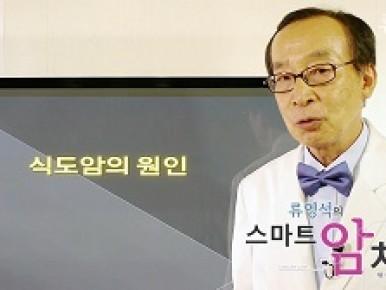 식도암의 원인 썸네일