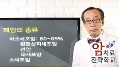 폐암의 종류